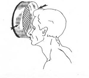 Устранение остаточных проявлений травмы черепа с помощью домашнего решета. рис.2