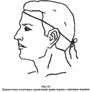 Огулов. Терапия травм головы. рис.1