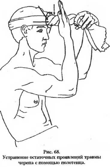 Как выправить голову после сотрясения