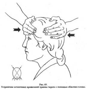 Рис. 4. Устранение напряжений обдавливанием головы.